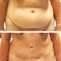 chirurgie esthetique du ventre